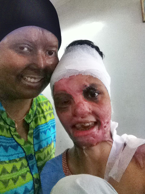 acid-attack survivor